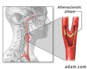 carotidarterysurgery_2